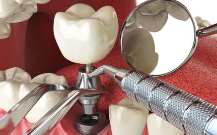 illustration Développement de la chirurgie implantaire et pré-implantaire